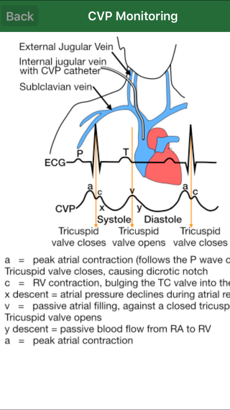 jugular vein pressure - 750×1334