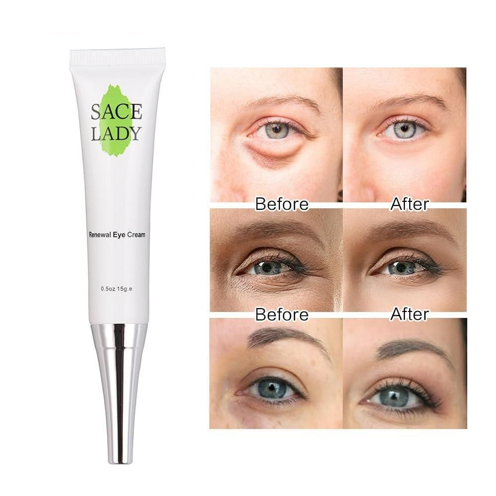 Eye Cream For Dark Circles Eye Cream For Dark Circles