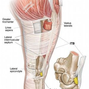 ITB or Not ITB... The Real Causes of ITB Syndrome in Runners ...