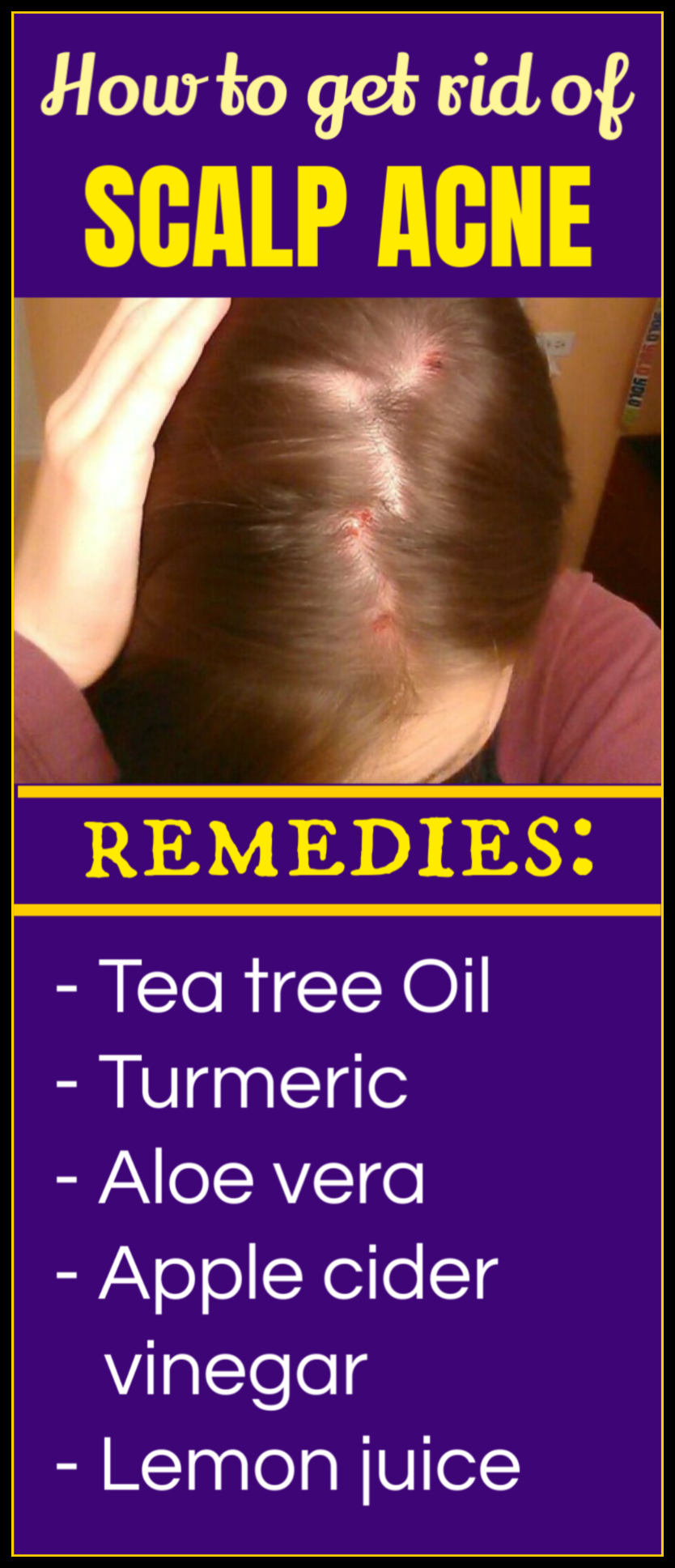 Acne natural treatment scalp How To