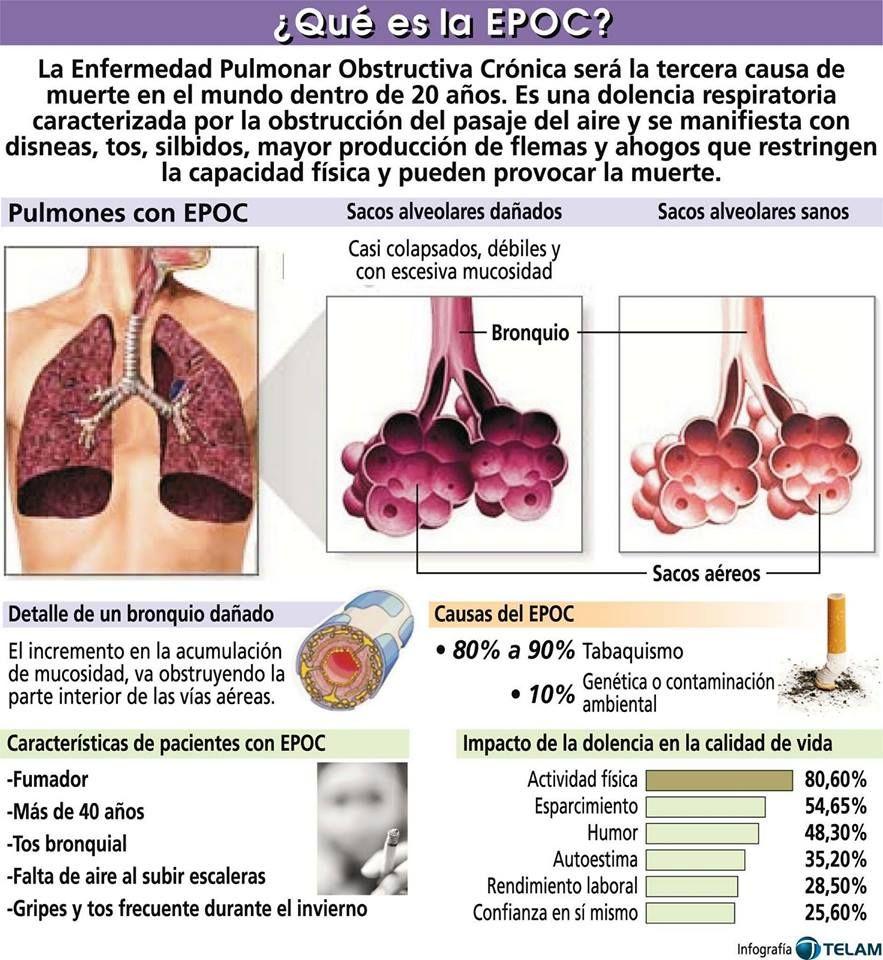Pin De Maria Lopez Cobos En Infografias De Salud Enfermedad Pulmonar Obstructiva Cronica Imagenes De Medicos Infografia Salud