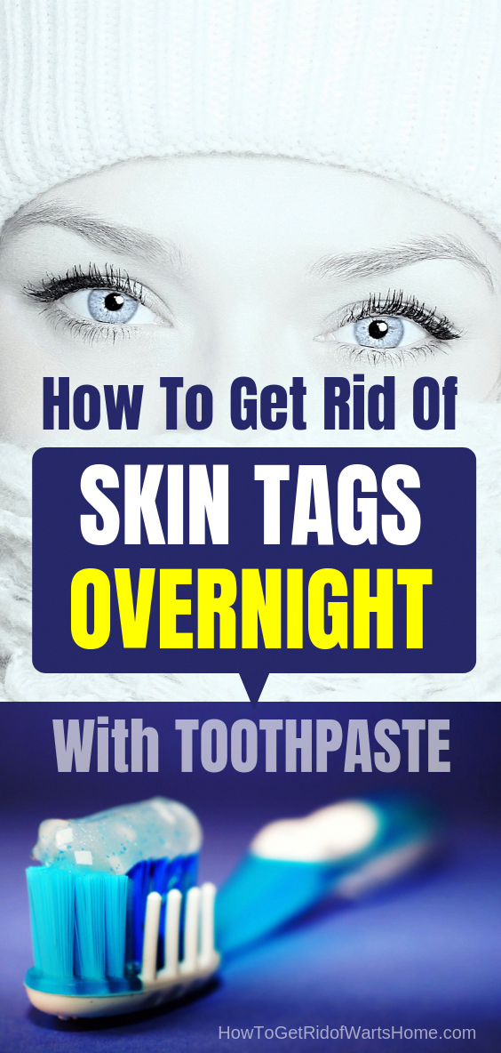Discover Painless Diy Skin Tag Removal Overnight With Toothpaste