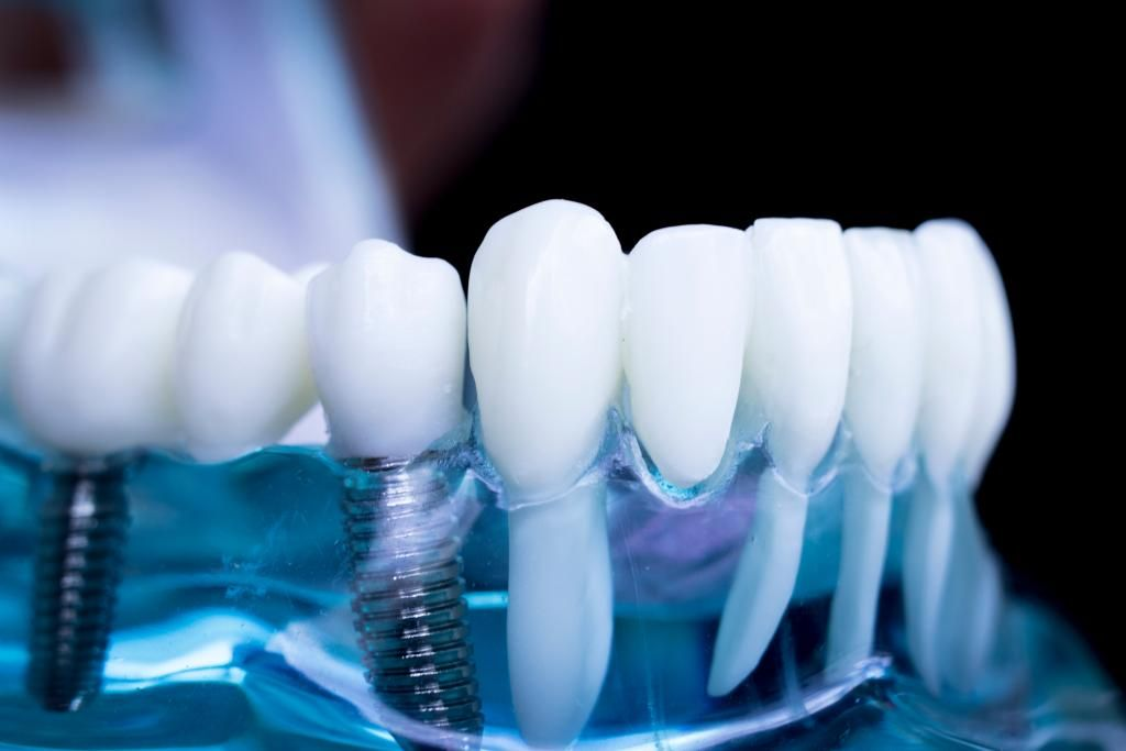 If you're missing one or more teeth, you might think there are only two options: live with an imperfect smile or suffer with an ill-fitting denture or bridge. But there's a painless solution at an affordable price, and you need to know about it. Dental implants can give you the confidence of a beautiful smile.…
