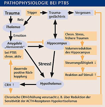 Posttraumatische Belastungsstörung - Klinik - Via medici