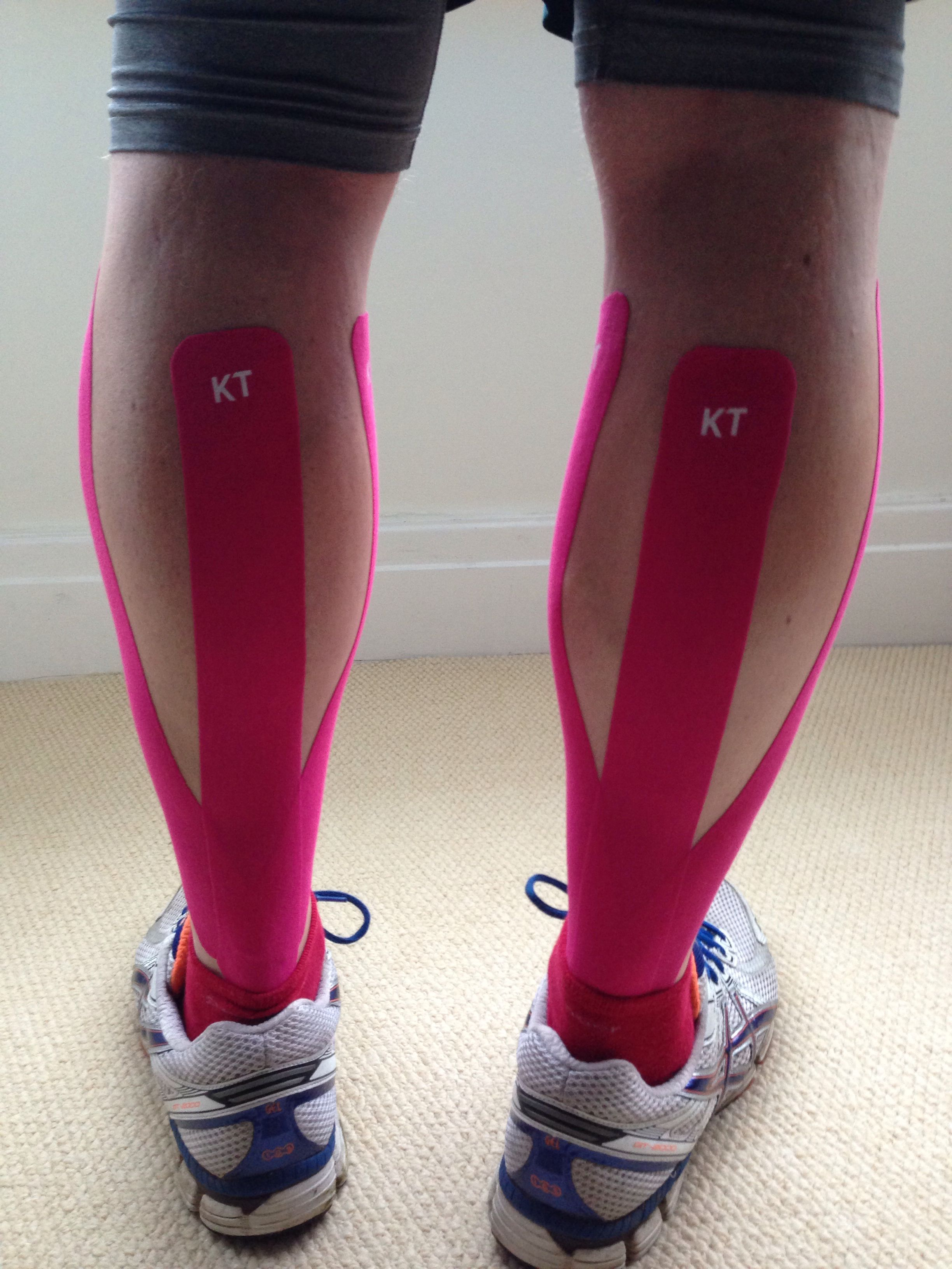 KT Tape UK Calf Taping (With images) Pulled calf muscle