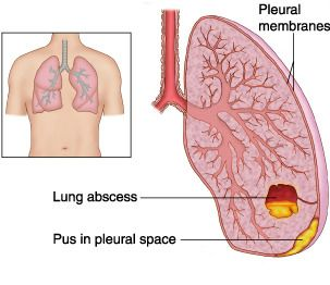 lung abscess - Yahoo Image Search Results   respiratory ...