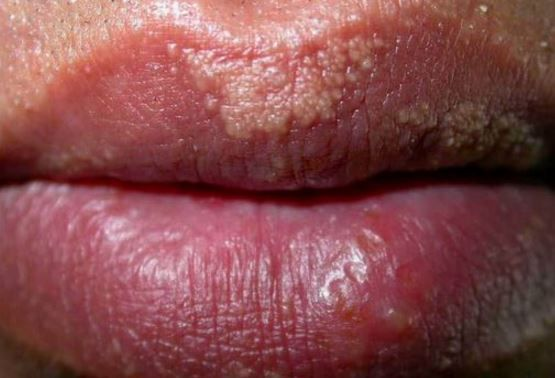 Small White Bumps On Lips Fordyce Spots Sunburned Lips Sunburnt