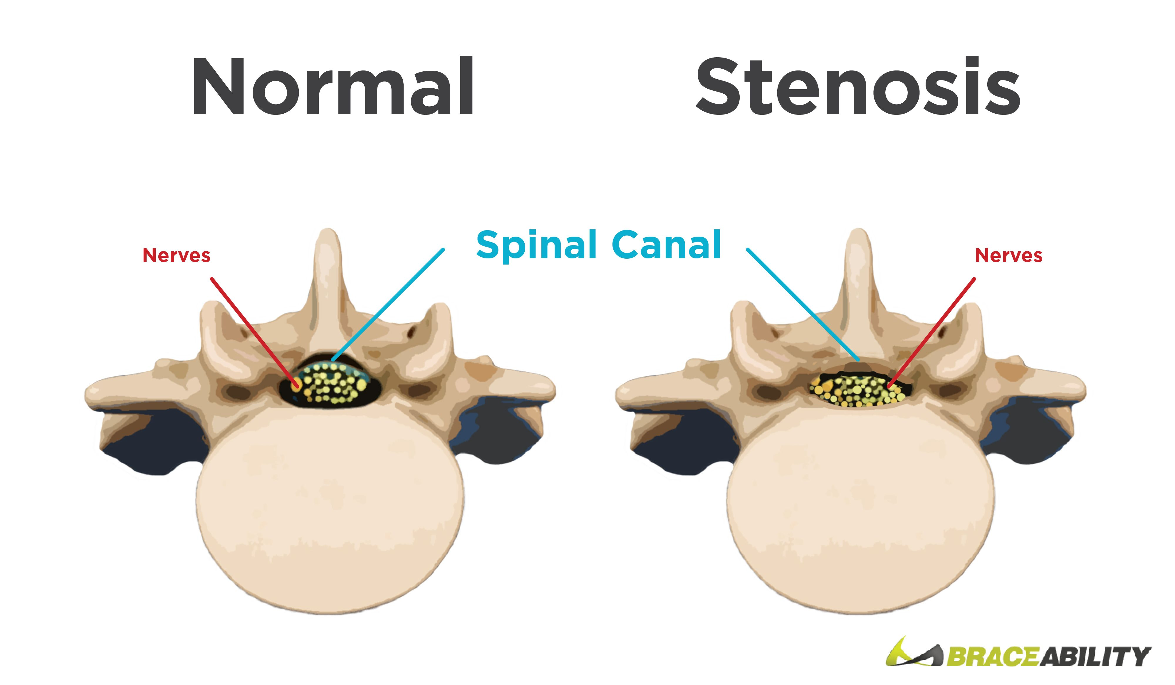Spinal Stenosis - Narrowing of the Spine | Spinal stenosis, Spinal ...