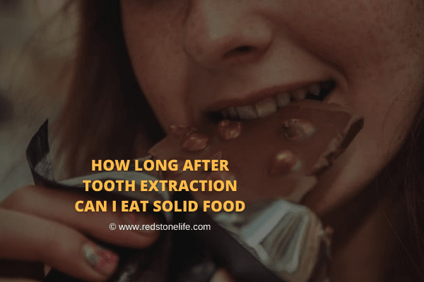 How Long After Tooth Extraction Can I Eat Solid Food Tooth Extraction Food After Tooth Extraction Eating After Tooth Extraction