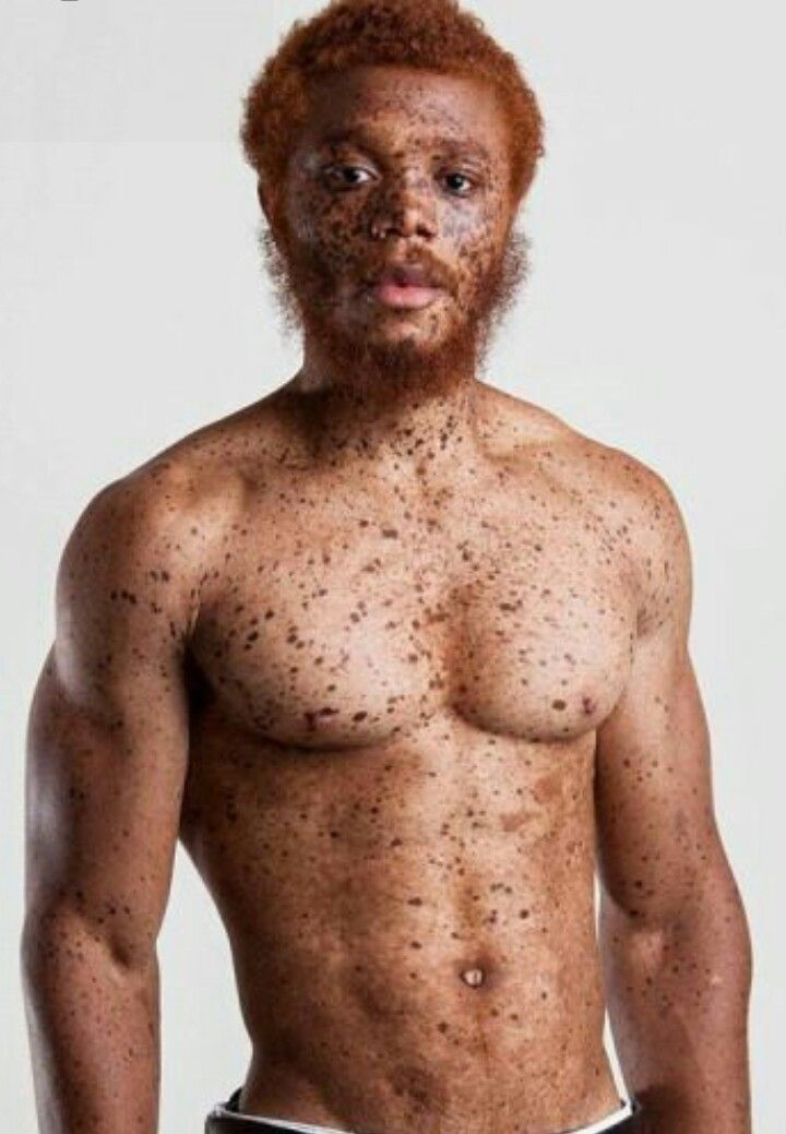 Red Hair And Freckles Redhead Men Freckles Red Hair