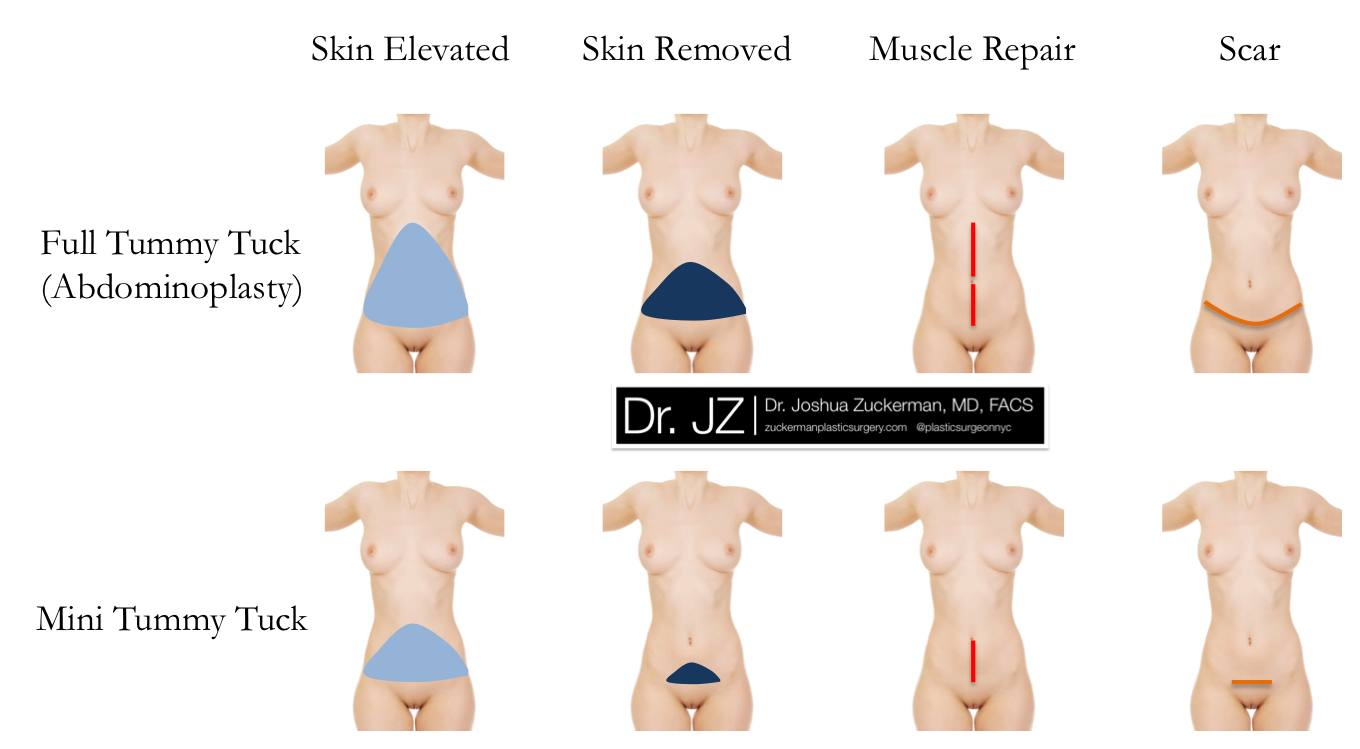 Mini Tummy Tuck Before After Photos Fort