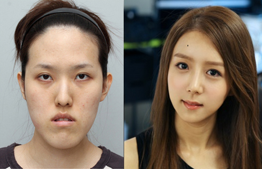 Unbelivable Plastic Surgery done in South Korea | Plastic ...