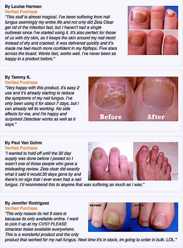 Zetaclear Review Nail Fungus Toenail Fungus Treatment Toenail