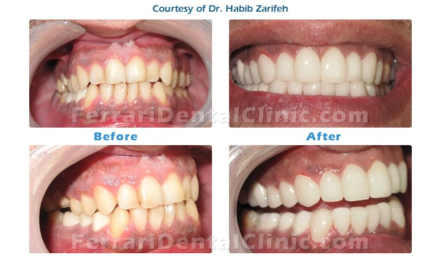 Hollywood Smile Gallery Before And After By Dr Habib Zarifeh Dental Veneers Dental Clinic Laser Dentistry