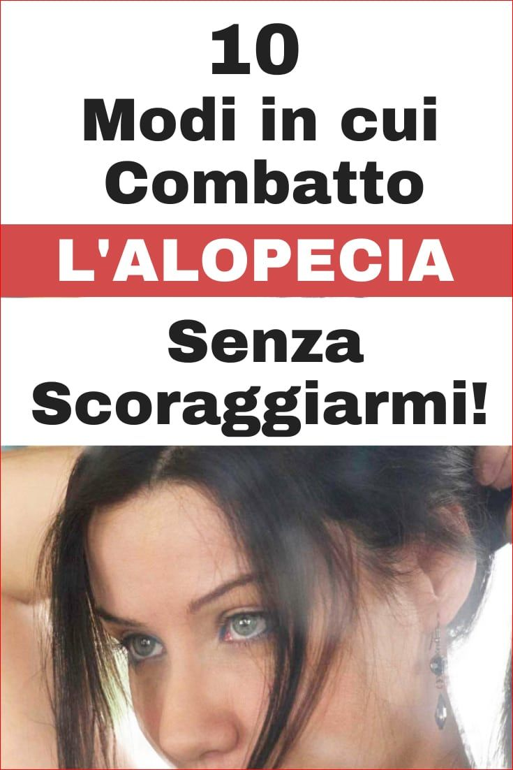 Alopecia Androgenetica Femminile: Caduta, Diradamento ...