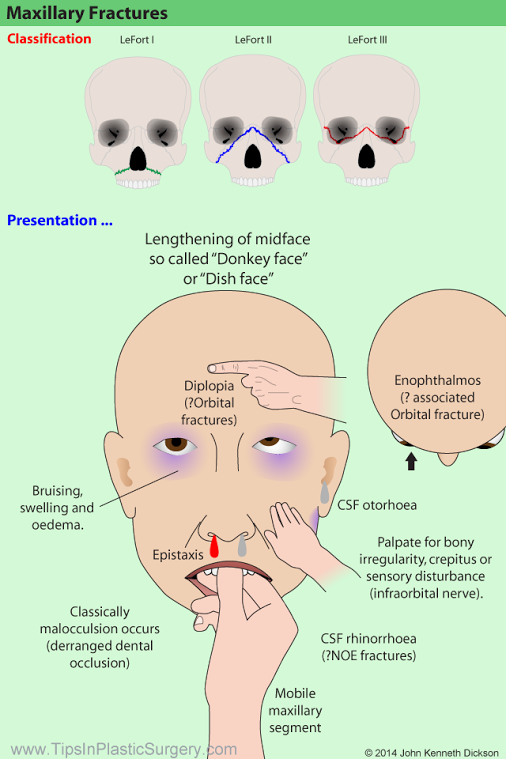Maxillary Fractures. Classified by Le Fort. Use this diagram to help you to?