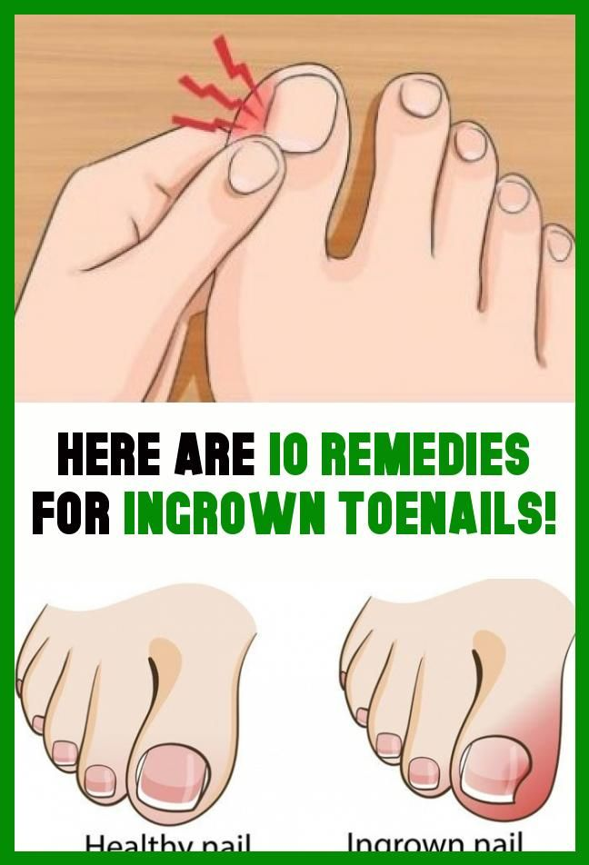 7dcaa83a8acb68d8ea13a98f3857180e - How Do You Get An Ingrown Toenail To Stop Hurting