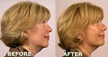 Before and After Face Yoga | Before and After | Pinterest | Face ...