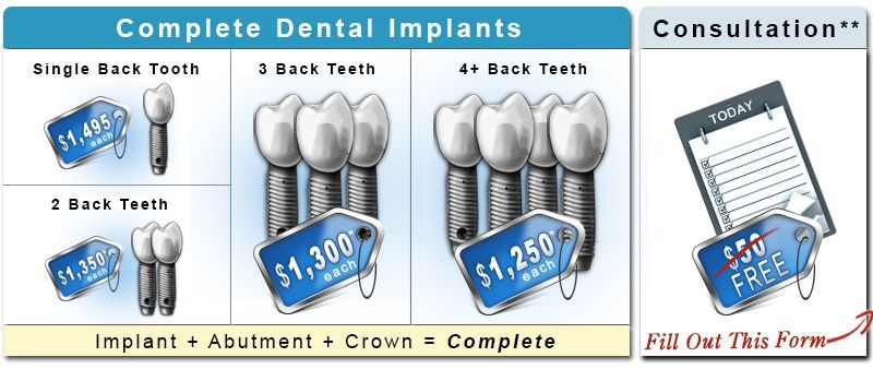 Dental implant costs with images dental implants