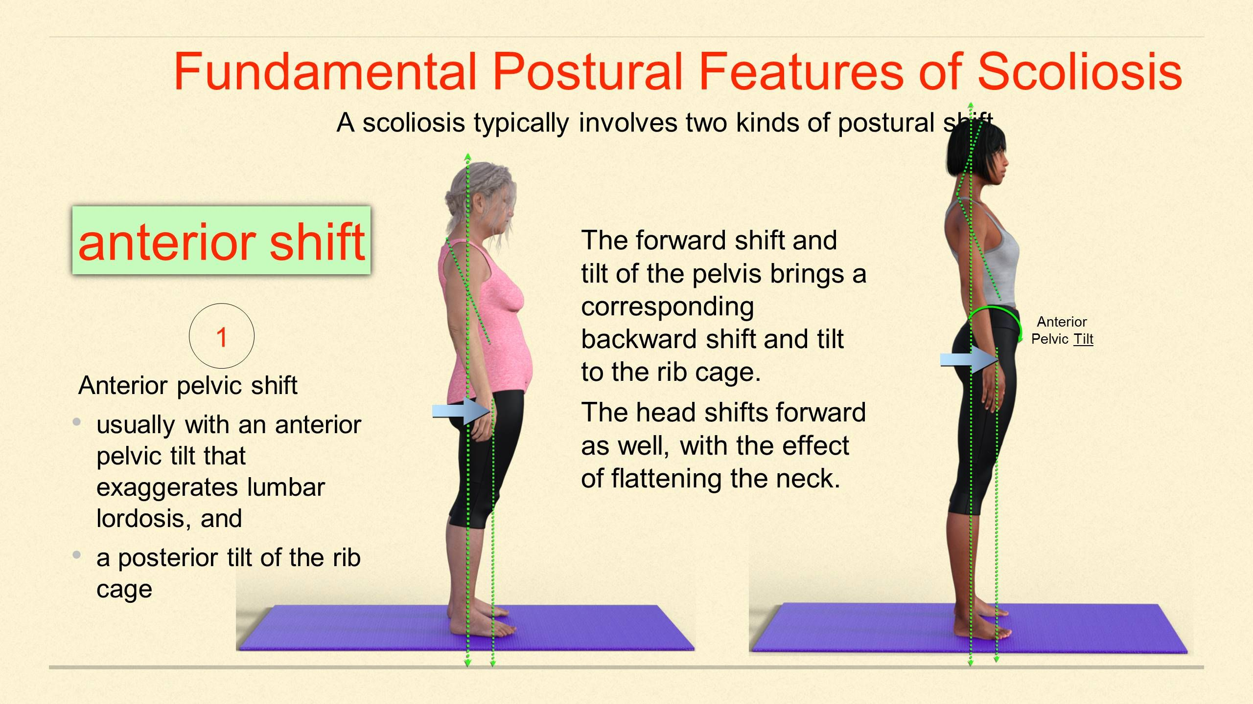 Sneak Peek Yoga For Scoliosis A Closer Look At Spinal Alignment With Doug Keller Yogauonline Yoga For Scoliosis Scoliosis Spinal