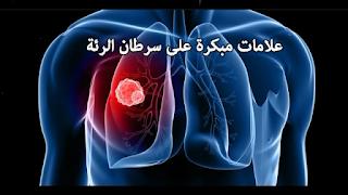 علامات مبكرة على سرطان الرئة Neon Signs Darth