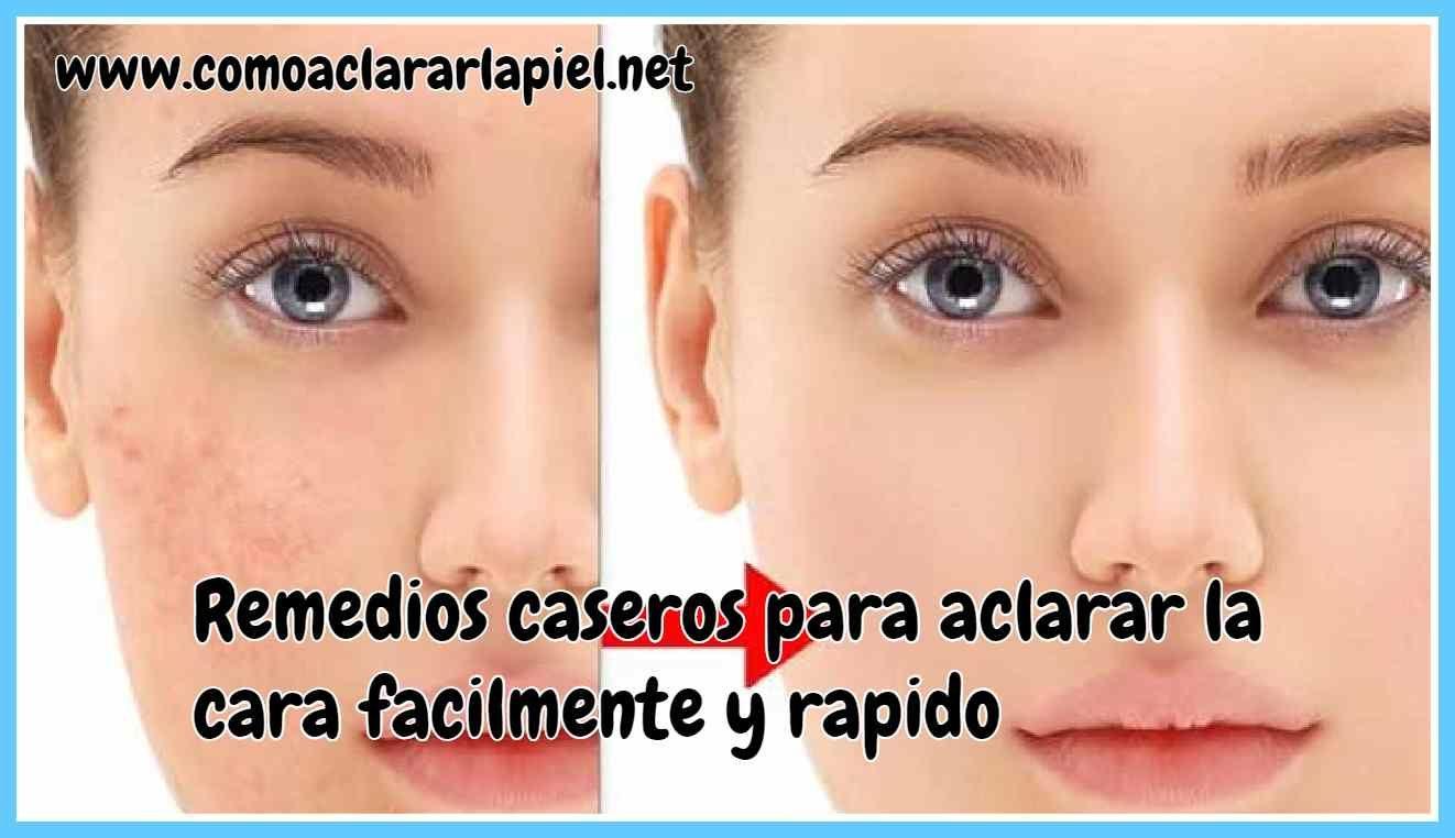 Remedios Caseros Para Desinflamar La Cara