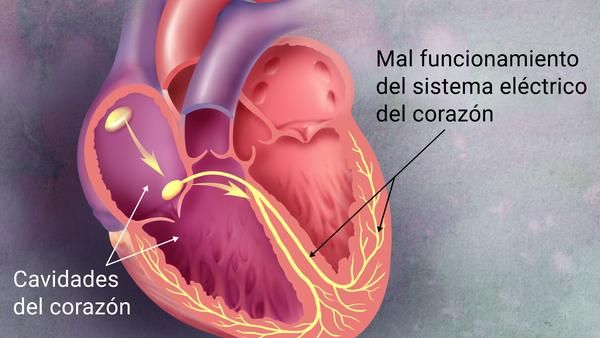 Diagrama del corazón que muestra el mal funcionamiento del sistema ...