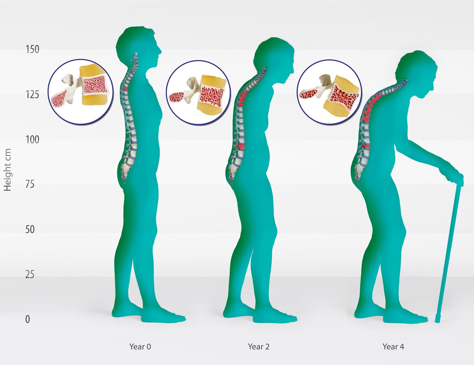 12++ How many women get osteoporosis ideas in 2021