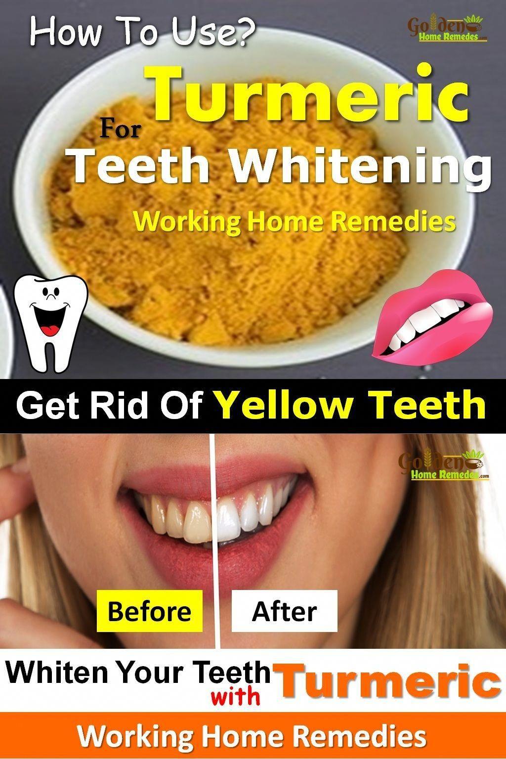 Teeth Whitening: Turmeric For Teeth Whitening: 10 Natural Ways To Use Turmeric For Teeth