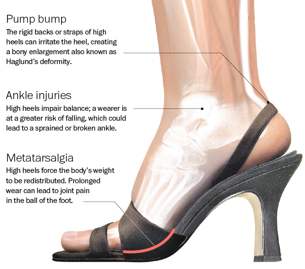3c200e74a71 This is what high heels can do to your feet. Also what working at a ...