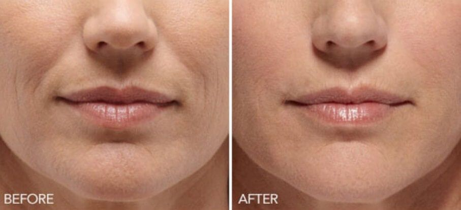 Get Rid Of The Smile Lines With These Effective Home Remedies Mr Healthy Living Smile Wrinkles Mouth Wrinkles Wrinkle Remover