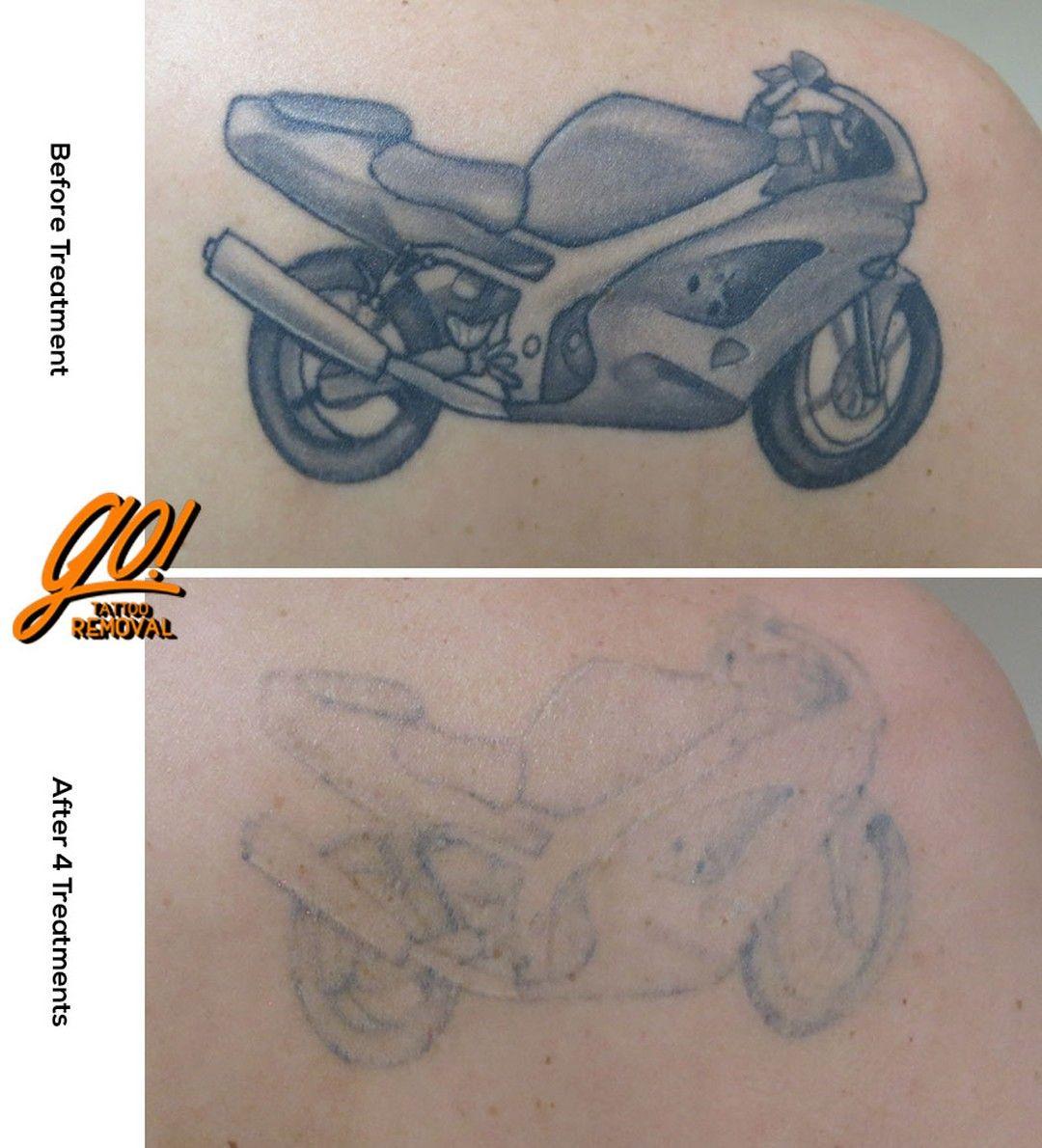 Pin on Tattoo Removal In Progress