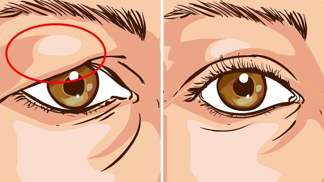 Comment resserrer naturellement la peau lâche sur les paupières - Native Heals |  Paupières tombantes, Paupières tombantes, Crème raffermissante pour la peau