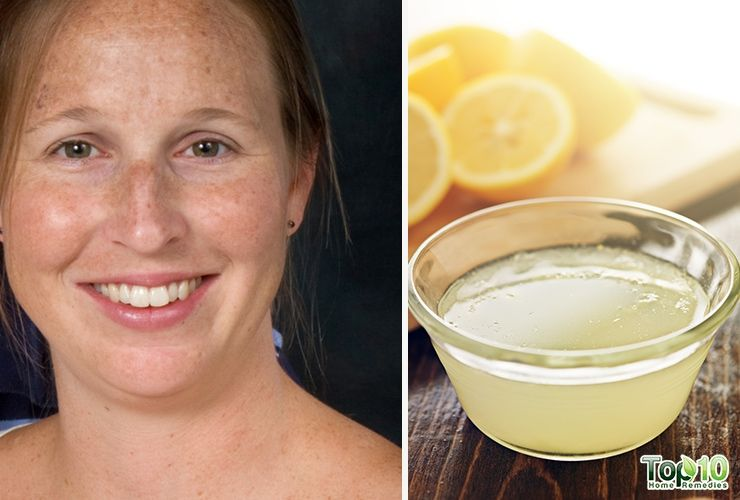 Park Art|My WordPress Blog_How To Cure Melasma From The Inside Home Remedies