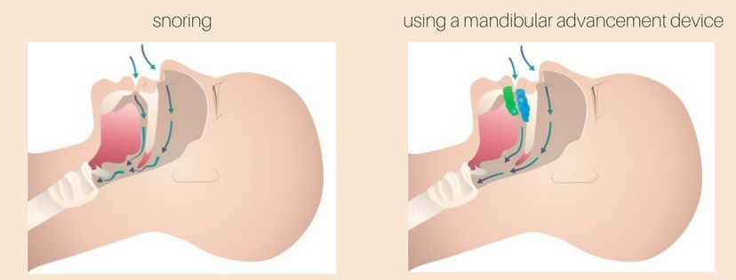 Mandibular Advancement Device For Snoring Image From The Sleep Guardian Snoring Solutions Cure For Sleep Apnea Snoring