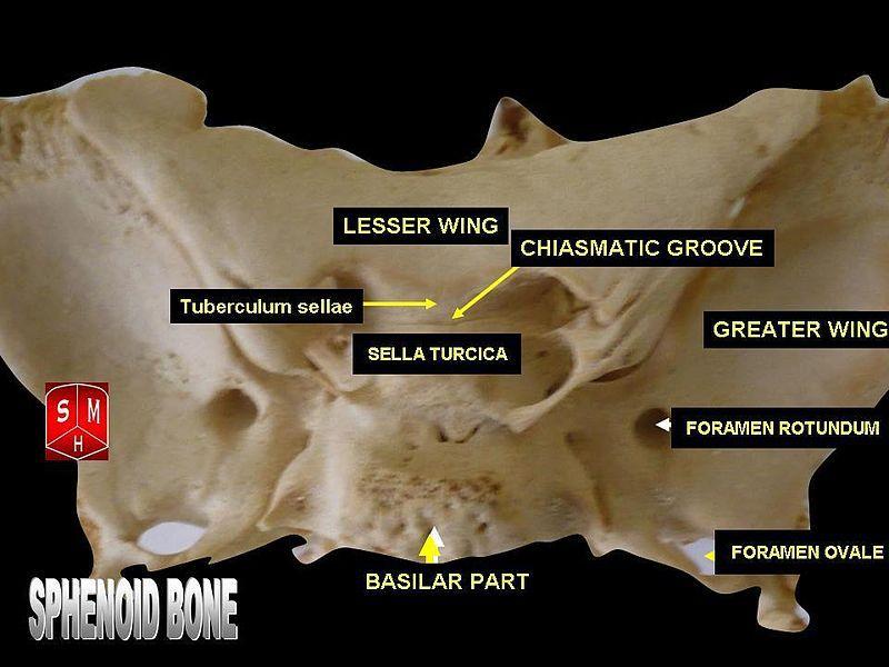 sphenoid bone - superior view - sphenoid bone - wikipedia, the, Sphenoid