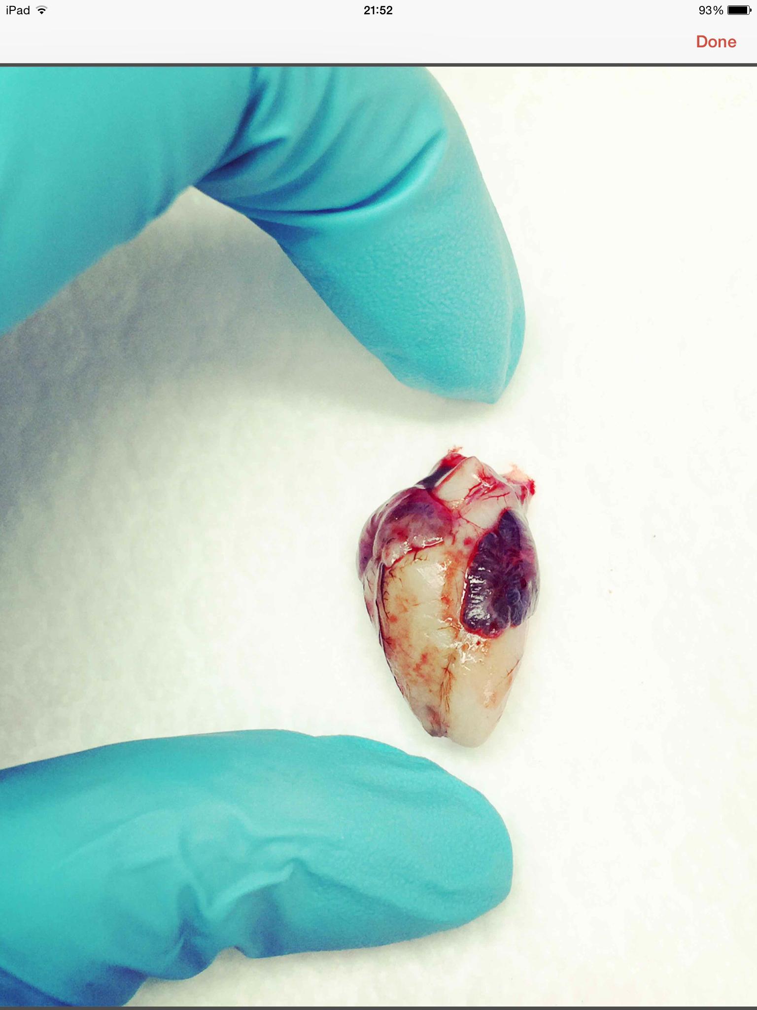 20wk old fetal heart   Heart   Pinterest   20 semanas, Medicina y ...