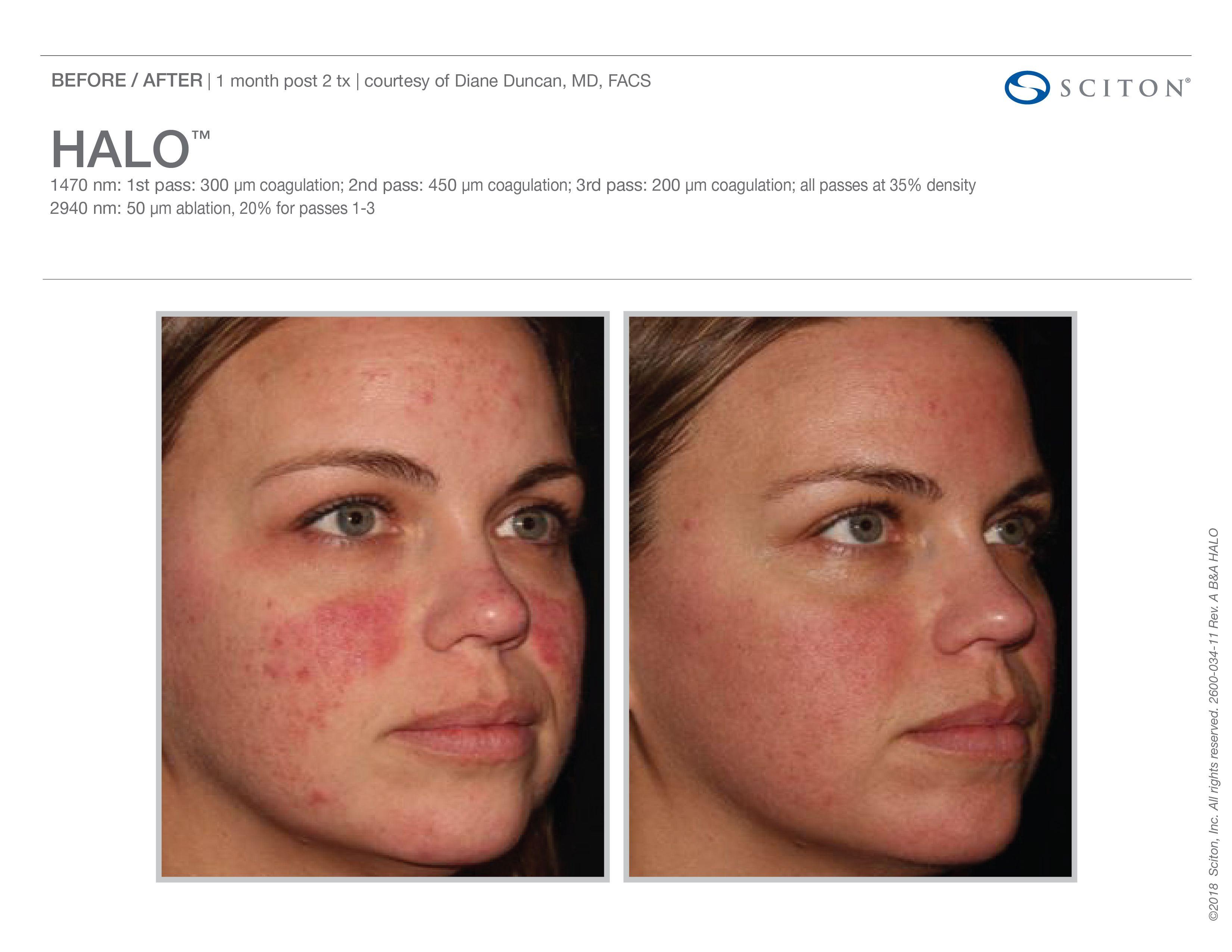 Sciton Halo Skin Rejuvenation in 2020 Med spa, Skin
