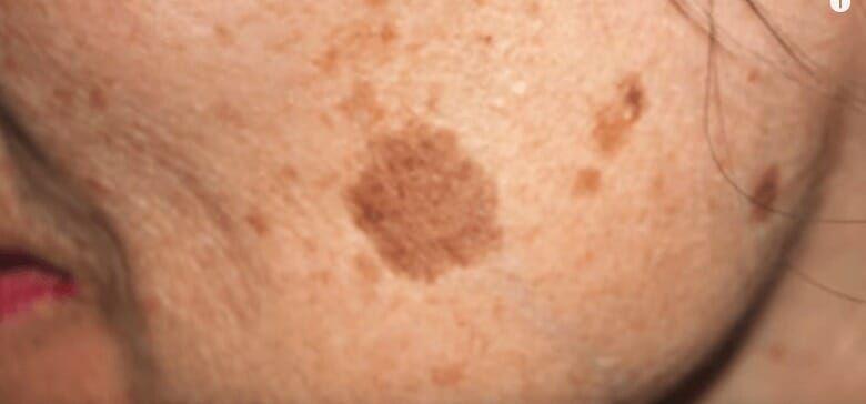 vita pigmentfläckar cancer