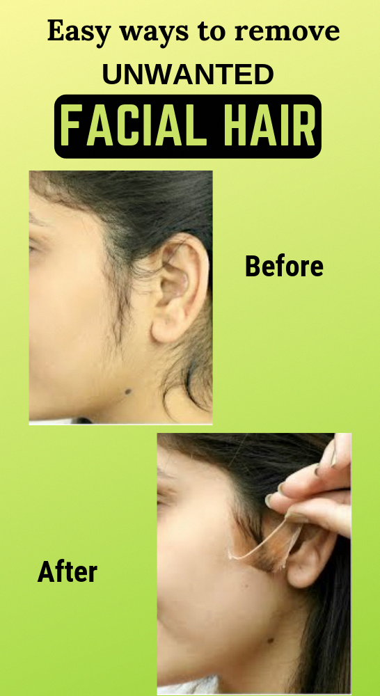 Natural Way To Remove Your Unwanted Facial Hair #facialhair #unwantedfacialhair …