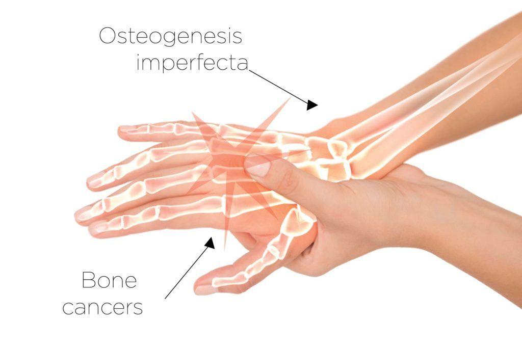 Osteogenesis Imperfecta by Nausoche Barnett