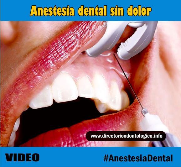 anestesia-dental-sin-dolor