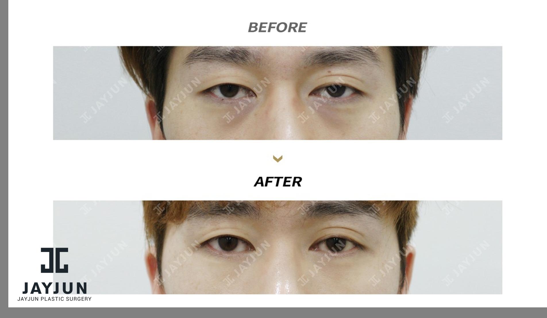 korea eye lifting korea droopy eyelid surgery korea double