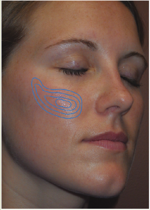 sweet cheeks - Hyaluronic acid tear trough filler placement