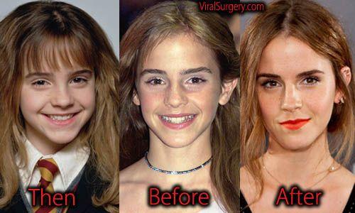emma watson plastic surgery before and after photos emmawatson
