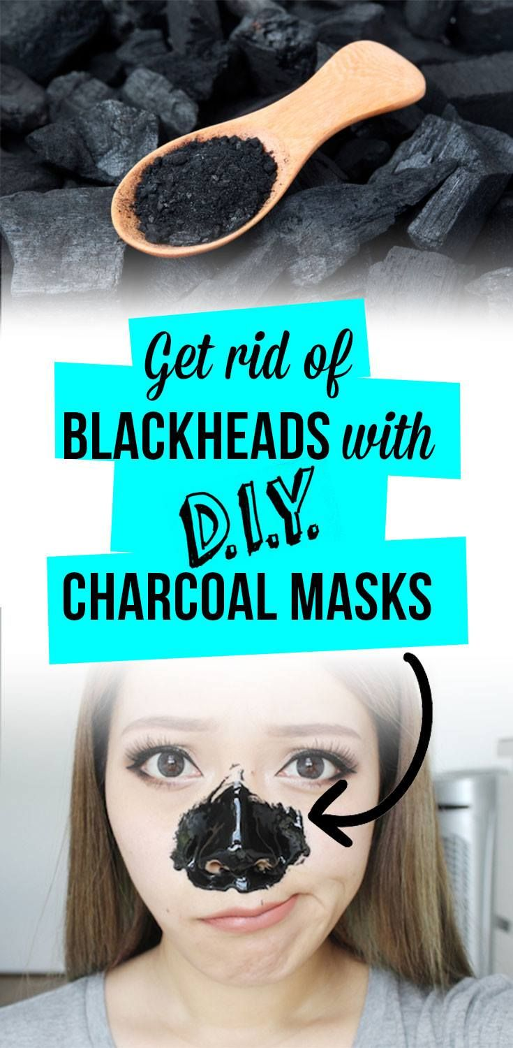 Get rid of blackheads with diy charcoal masks activated
