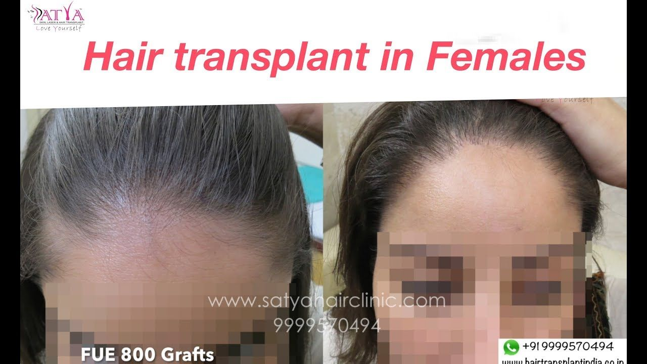 Hair Loss In Females Is A Very Common Problem Female Pattern Hair Loss Is Different From The Ma Male Pattern Hair Loss Female Pattern Hair Loss Help Hair Loss
