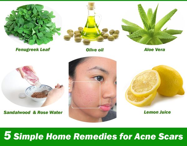 The Top Best Rated Io Games List Home Remedies For Acne Acne