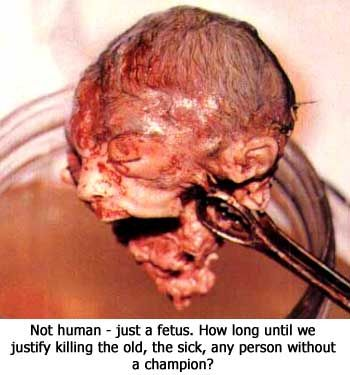 Unborn Souls in Heaven | What Does Abortion Look Like