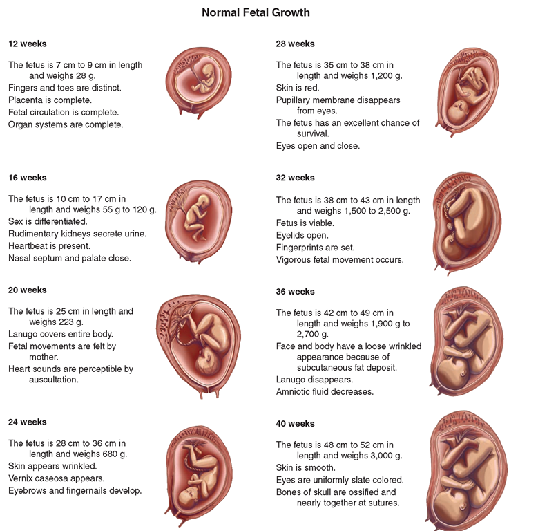 photos of fetal development | FIGURE 65-7 · Different stages of ...